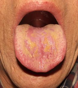 【舌診学】メニエール病,耳鳴り/症例No.4-②