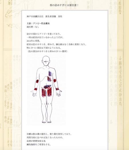 【症例集】アトピー性皮膚炎:神戸市東灘区の匿名希望様