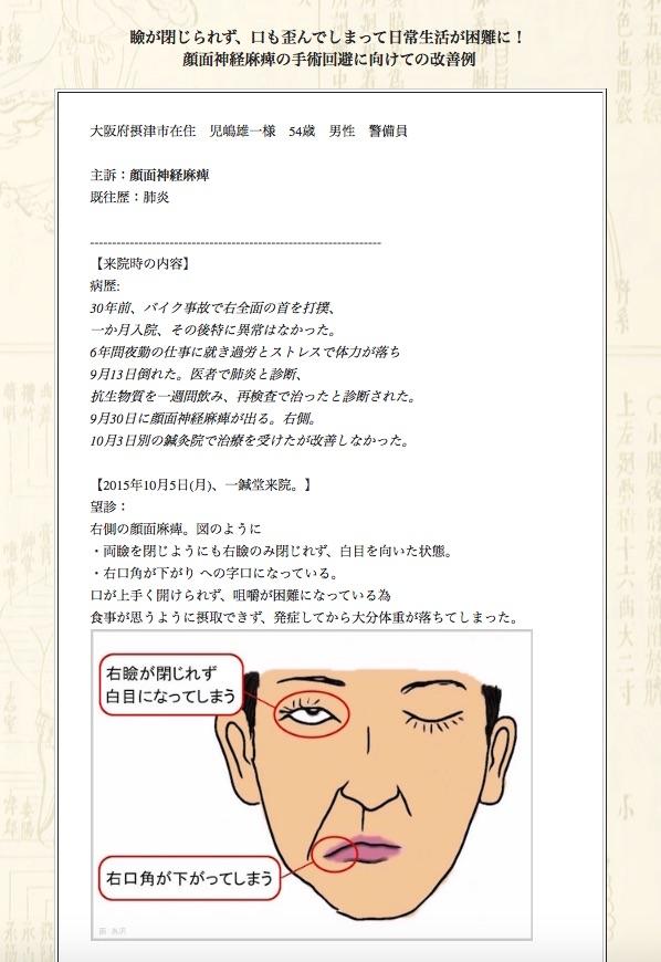 【症例集】顔面神経麻痺:大阪府摂津市の児嶋雄一様