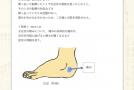 【症例集】足首の捻挫:大阪府吹田市のS.S様