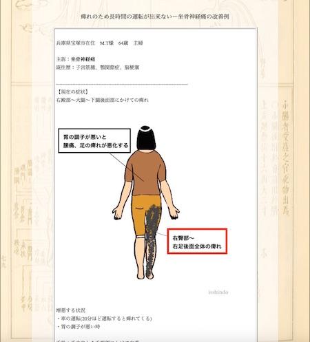 坐骨神経痛:兵庫県宝塚市のM.T様