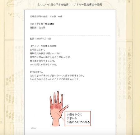 アトピー性皮膚炎:兵庫県伊丹市のH.U様