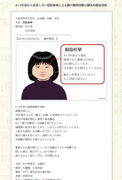 【症例集】眼筋麻痺:大阪府吹田市のH.M様
