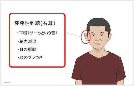 性 難聴 突発